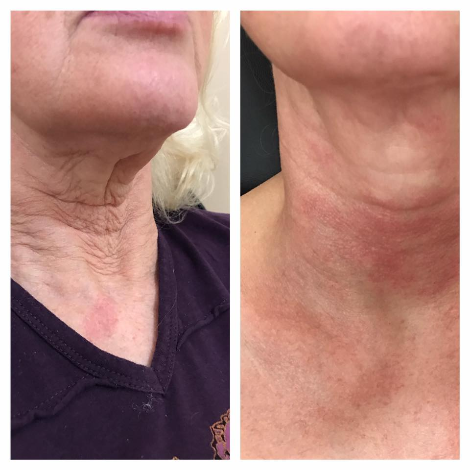 RX Neck Peel Allure Aesthetics Med Spa
