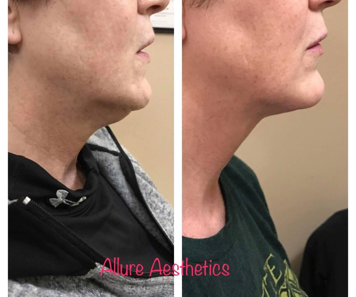 Kybella, 2 Treatments 6 weeks apart