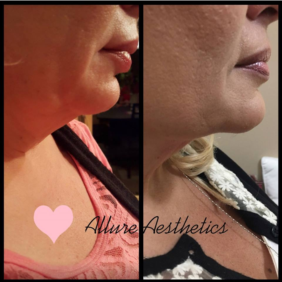 Kybella Allure Aesthetics Great Falls MT