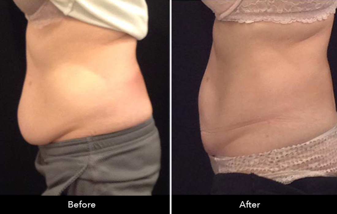 Cool-sculpting-before-and-after