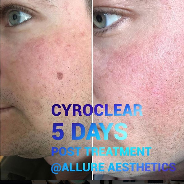 cryoclear-before-after