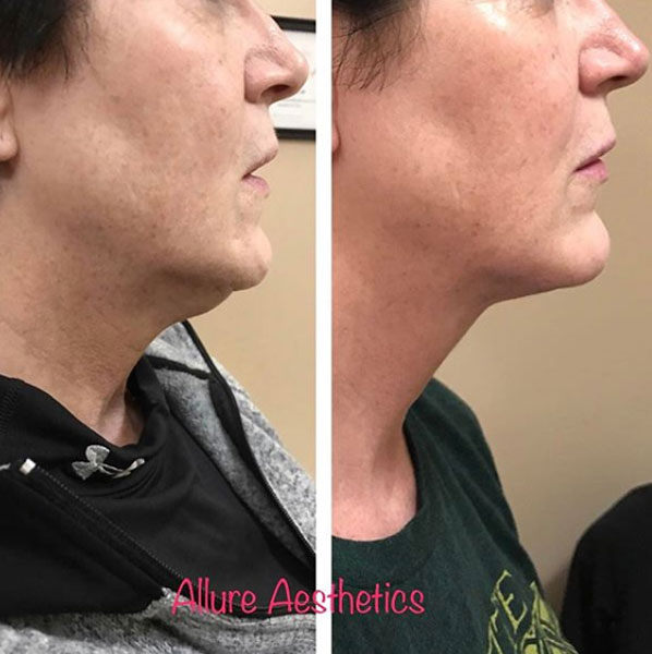 kybella-allure-great-falls