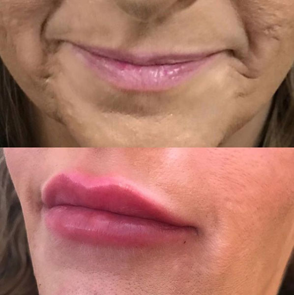 Juvaderm-lip-filler-allure-aesthetics