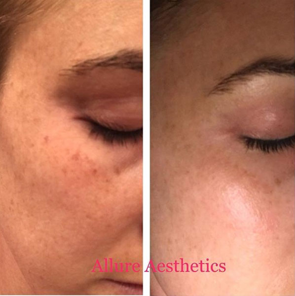 photofacial-allure-aesthetics
