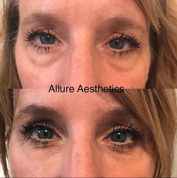remove-circles-under-eyes-Restylane