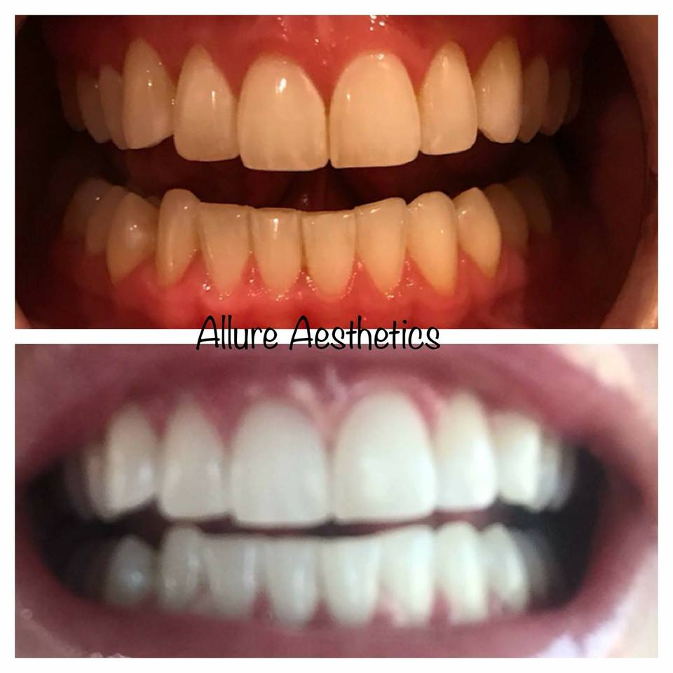 teeth-whitening-great-falls-mt