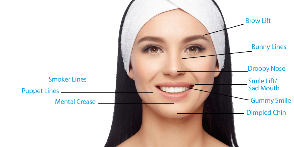 Botox - Allure Aesthetics - Med Spa Great Falls, MT